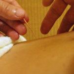 こも池鍼灸院の不妊鍼灸治療